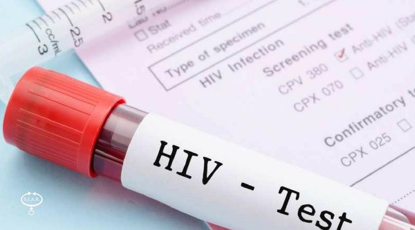 Allo Spallanzani, test salivare per l'Hiv gratis a tutti